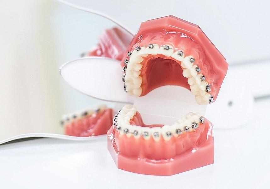 визит к ортодонту