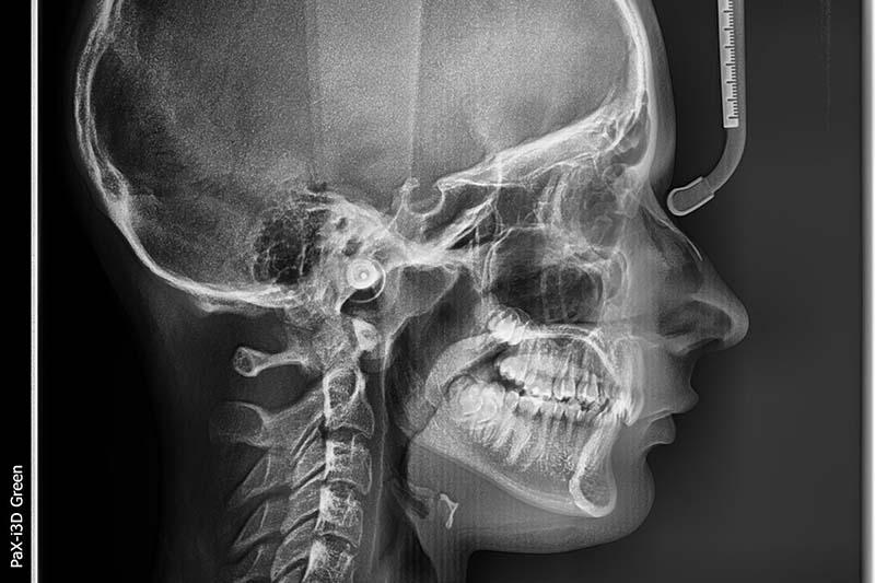 телерентгенограмма головы в боковой проекции